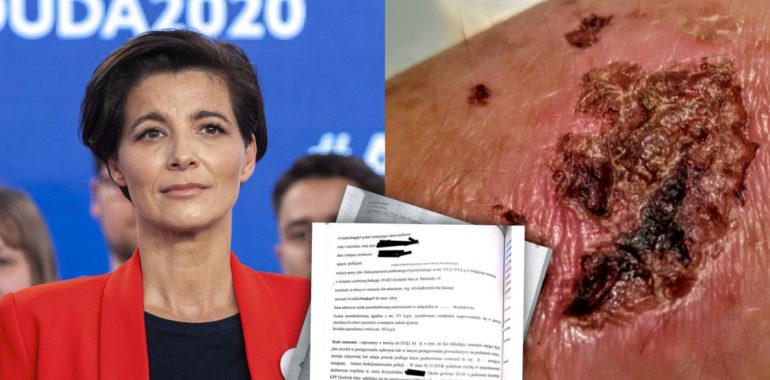 Jolanta Turczynowicz-Kieryłło i ugryziony mężczyzna. Zestawienie materiałów.