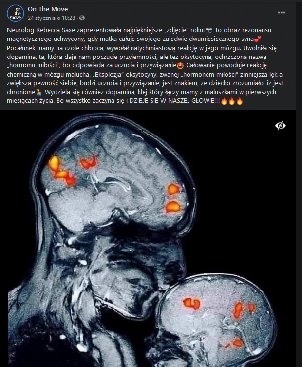 najpiękniejsze zdjęcie roku / wyrzutu oksytocyny w mózgu dziecka