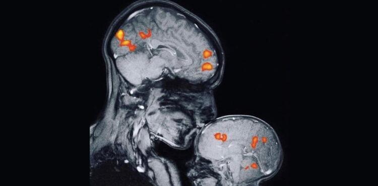 """Nie, """"najpiękniejsze zdjęcie roku"""" nie przedstawia wyrzutu oksytocyny w mózgu dziecka"""